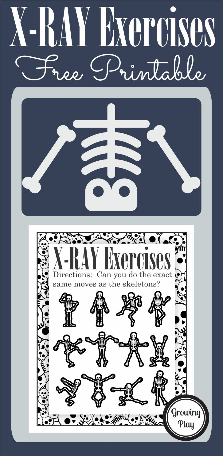 photo relating to Printable X Rays named X-Ray Workouts Faux Participate in or Halloween - Developing Participate in