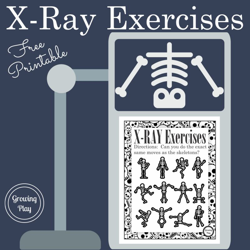 graphic about Printable X Rays identified as X-Ray Workouts Fake Perform or Halloween - Increasing Engage in